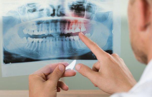 נזק חמור בעקבות טיפול ליישור שיניים? ייתכן שמדובר ברשלנות רפואית